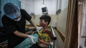عکس/ جراحت کودکان فلسطینی بر اثر حملات رژیم صهیونیستی