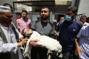 عکس/ صورت سوخته کودک بی گناه فلسطینی که به خواب ابدی رفته است
