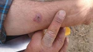 شیوع بیماری مشابه سیاهزخم و مرگ صدها دام در استان ایلام