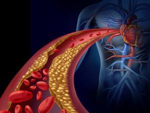 روشهای فوقالعاده مؤثر برای کاهش کلسترول بالا