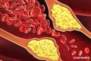 بالا بودن کلسترول خون چه تبعاتی دارد؟