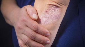 اگزما، بیماری پوستی در روزهای کرونایی