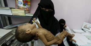 سازمان ملل: یمنیها از روی فقر به گدایی، کار و ازدواج کودکان رو آوردهاند
