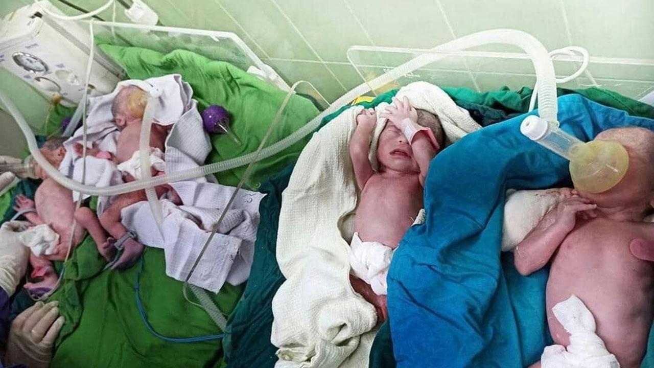 تولد چهار قلوها در گرگان