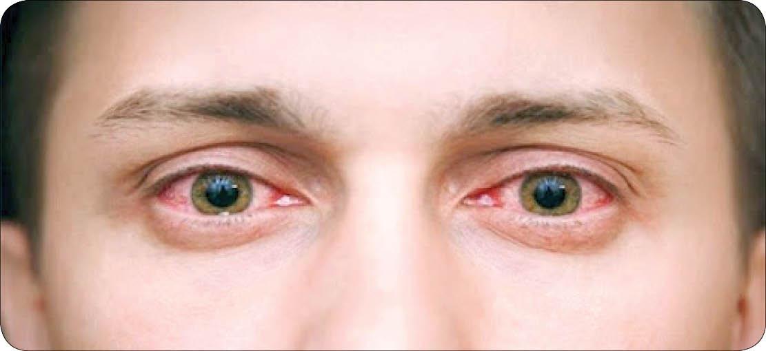 راهکارهای پیشگیری از «خراش قرنیه»؛ مشکل دردناک چشم