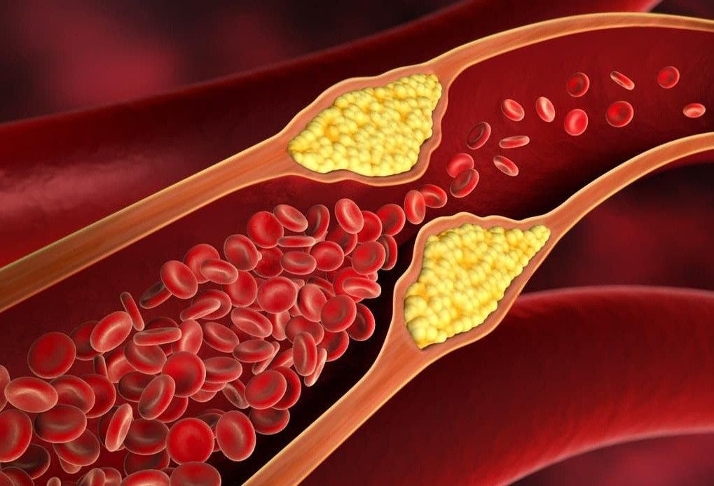 غلظت خون چه بیماریهای خطرناکی به همراه دارد؟