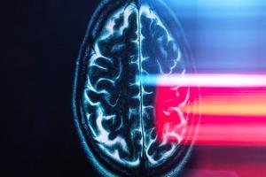 هوش مصنوعی آلزایمر را ۷ سال پیش از ظهور علائم بالینی پیشبینی میکند