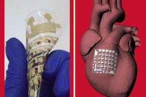 بررسی مشکلات قلبی با کمک برچسبی که روی قلب قرار میگیرد