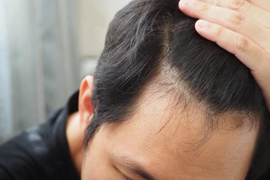 دلایل ریزش مو در مردان؛ هراسِ کچلی