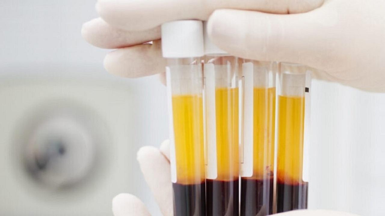 واقعاً اهدای پلاسما برای نجات بیماران کرونایی مفید است؟