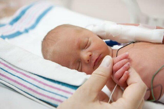 عوارض زایمان زودرس برای مادر و کودک