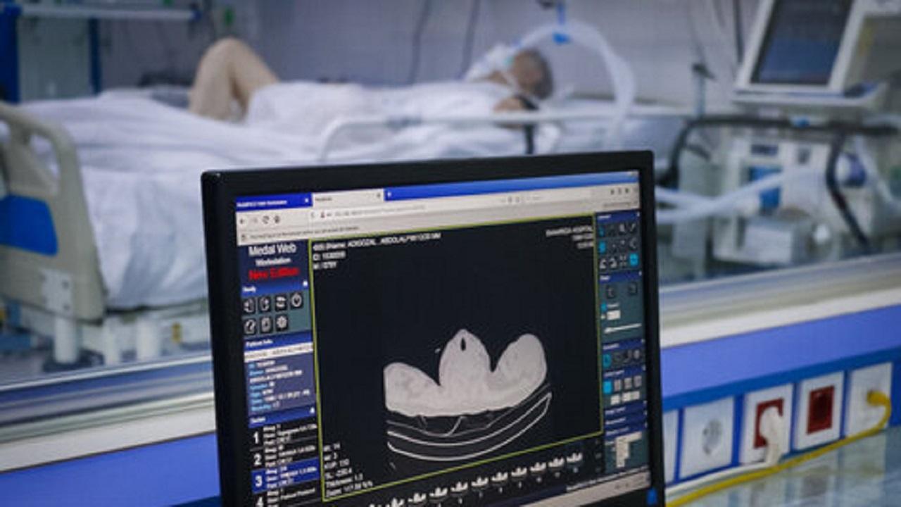 بستری ۲۴ بیمار جدید مبتلا به کرونا در مراکز درمانی کاشان