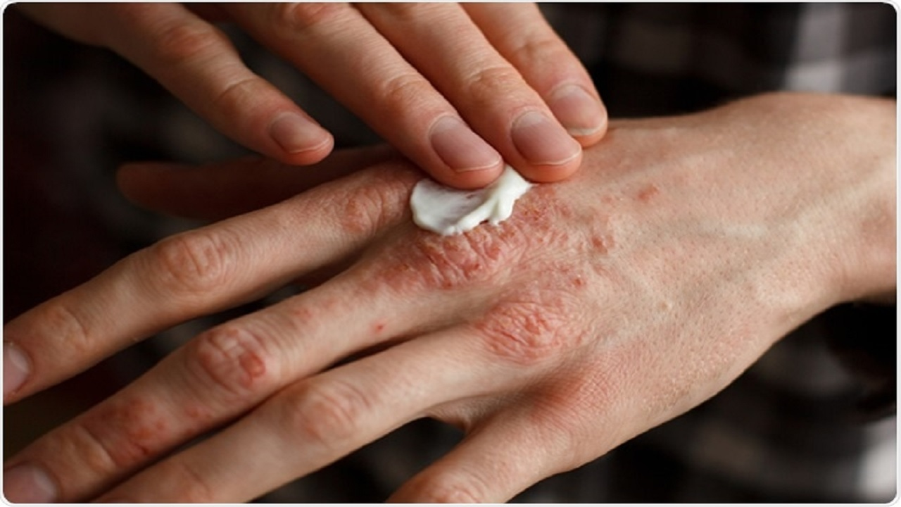 ۶ راهکار ساده برای درمان اگزمای پوستی