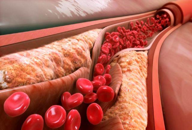 6 علامت کلسترول بالای خون