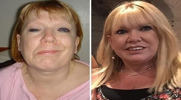 تزریق بوتاکس نقص ۱۹ ساله صورت یک زن را ترمیم کرد!