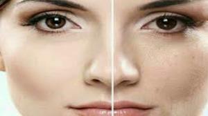 ۷ روشی که پوستتان را صاف و زیبا میکند