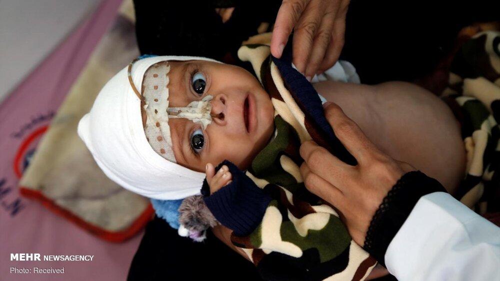 عکس/ نسل کشی خاموش یمنی ها