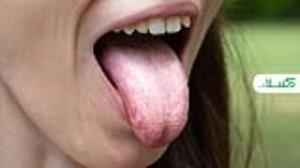 علت سفیدی زبان و درمان های خانگی آن