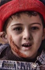 زخم های دردناک بر بدن پسربچه ای که قربانی شد