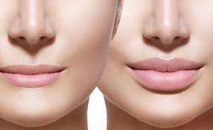 حکایتِ زیر 15 ساله هایی که می خواهند جراحی زیبایی انجام دهند
