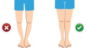 مشکل پاهای پرانتزی و راه های درمان آن