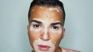 اتفاق ساده ای که زندگی مدل مبتلا به بیماری پوستی را تغییر داد!