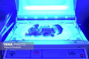 تولد نوزاد ۶۸۰ گرمی در بیمارستان بهار شاهرود