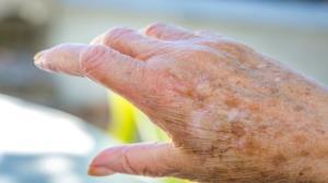 ۵ بیماری پوستی عجیب که افراد کهنسال را درگیر میکند