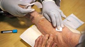 شناسایی آلزایمر بدون علامت با آزمایش خون