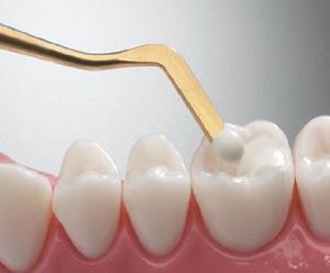 راهاندازی خط تولید ملی ایمپلنت دندانی
