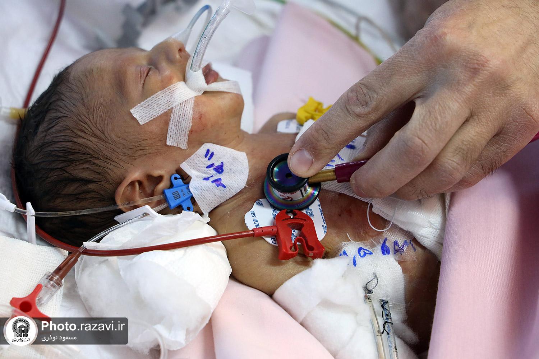 عکس/ جراحی موفقیتآمیز قلب نوزاد نارس در بیمارستان رضوی