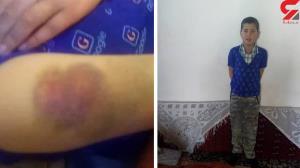 مادر دانش آموزی که تنبیه شده بود: معلم را بخشیدیم