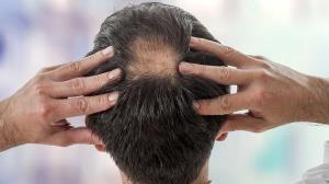 ریزش مو یکی از عوارض کروناست