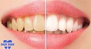چرا رنگ دندان تغییر میکند؟