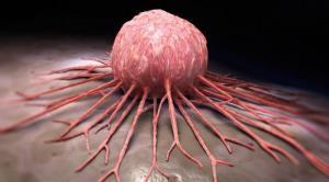 عادتهای روزمره سرطانزا