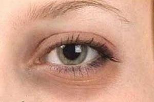 از بین بردن سیاهی دور چشم با چند ماده طبیعی موثر