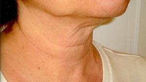 درمان افتادگی پوست صورت با چند روش ساده
