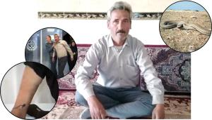 روایت عجیب مارگزیده ترین مرد ایران!