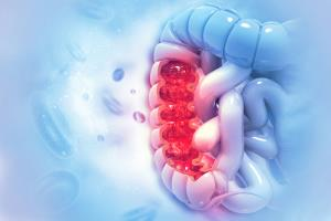 سبک زندگی یا ژنتیک، کدامیک در رشد سرطان روده مقصر هستند؟