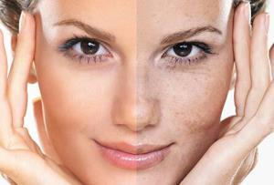 انواع لکههای پوستی و راههای درمان