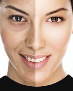 برای روشن و سفید شدن پوست چه بخوریم؟