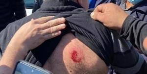زخمی شدن عضو عرب کنست در حمله پلیس صهیونیستی