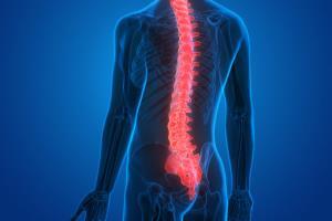 درمان جدید آسیب نخاعی با سلولهای بنیادی