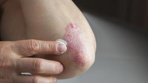 ۷ خوراکی که اختلالات پوستی را از بین میبرند