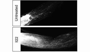 شناسایی ژنهایی که از بازسازی سلولهای عصبی جلوگیری میکند