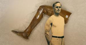قهرمانی یک ژیمناست با پای چوبی!