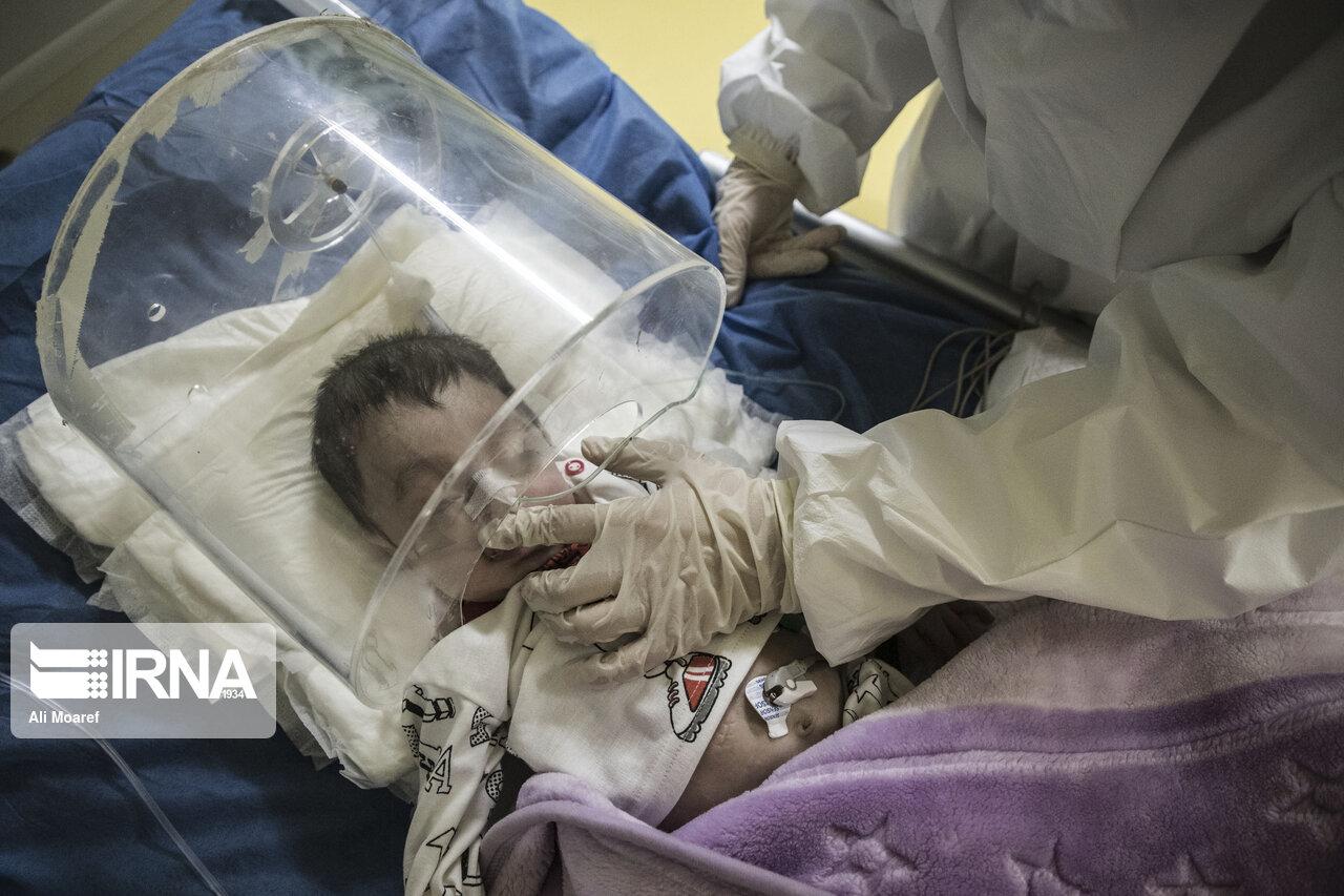 تصاویری متاثر کننده از کودکان مبتلا به کرونا