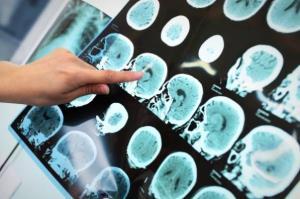 راه حل هایی که نقشه برداری مغز، پیش روی پزشکان می گذارد