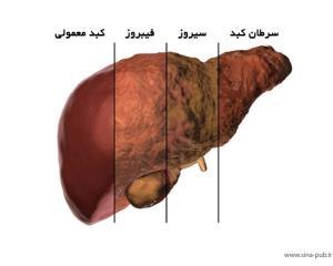 سکته عامل مرگ ۸۰ درصد مبتلایان کبد چرب پیشرفته