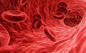 کم خون ها رعایت غذایی خاصی دارند؟